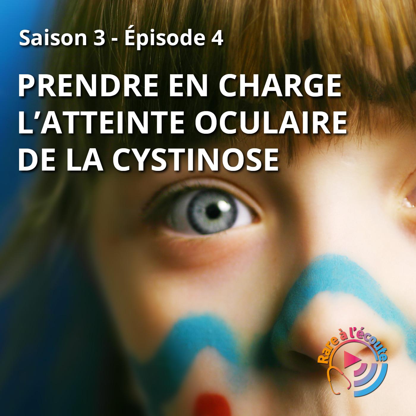 Prendre en charge l'atteinte oculaire de la Cystinose