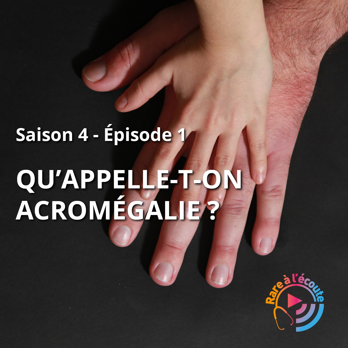 Qu'appelle-t-on Acromégalie ?